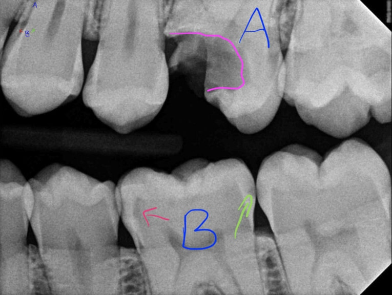 actual patient dental x-ray